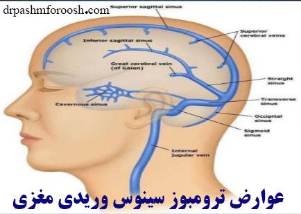 عوارض ترومبوز سینوس وریدی مغزی