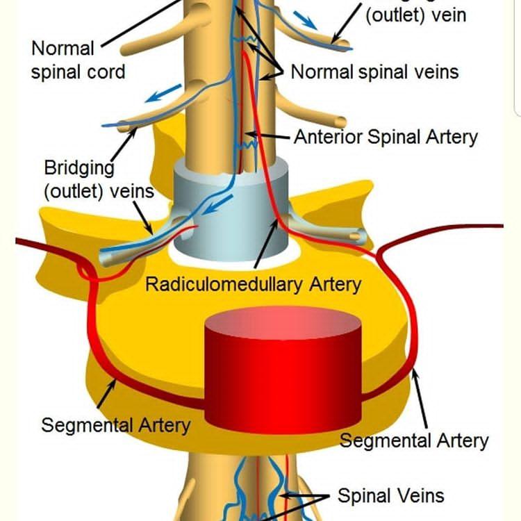 فیستول های شریانی وریدی نخاع