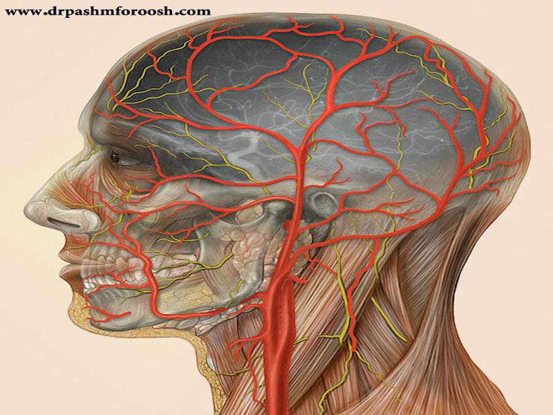 تشخیص آرتریت شریان تمپورال