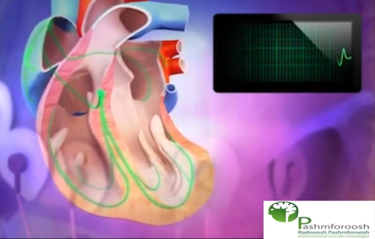 فیبریلاسیون دهلیزی و سکته مغزی