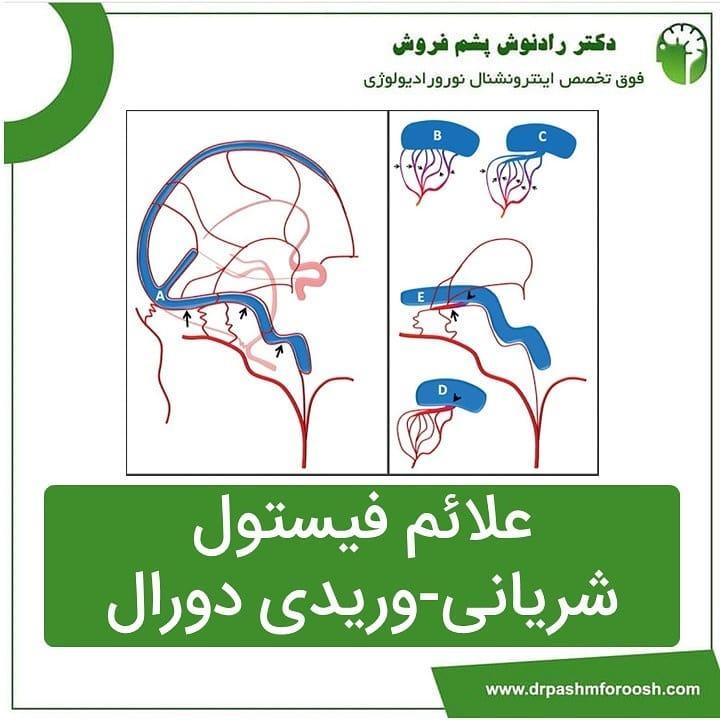 علائم فیستول شریان-وریدی دورال