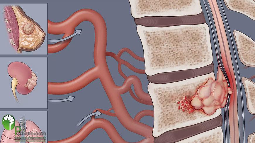 تومورهای خوش خیم ستون فقرات