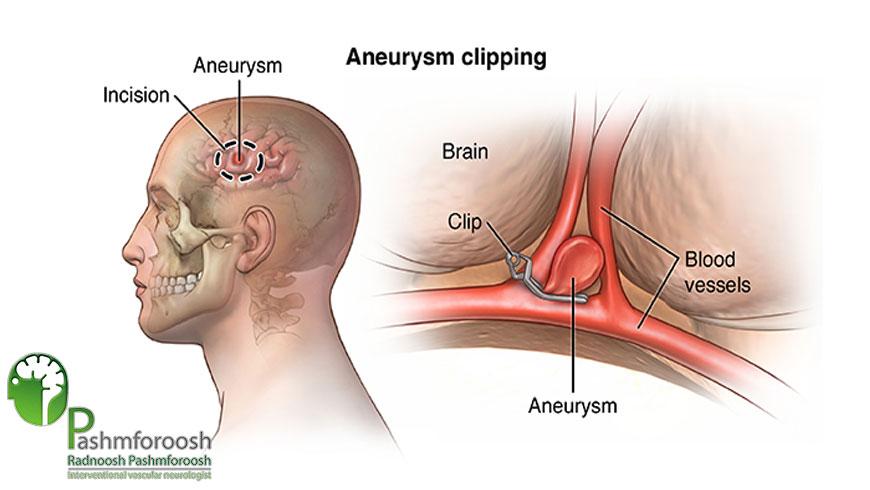 هزینه عمل جراحی آنوریسم مغزی