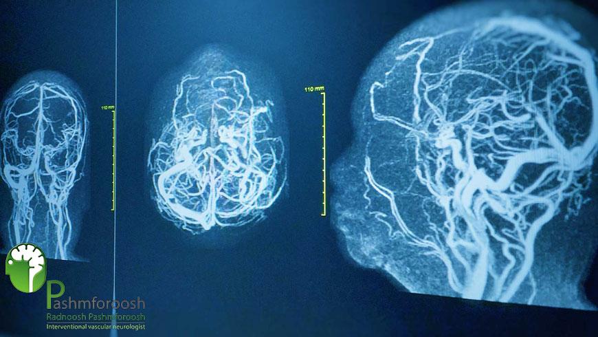 آنوریسم مایکوتیک مغز