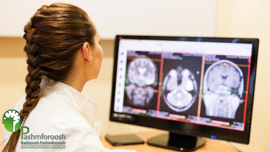 بهترین جراح آنوریسم مغزی