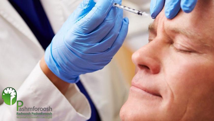 تزریق استاندارد بوتاکس برای درمان میگرن