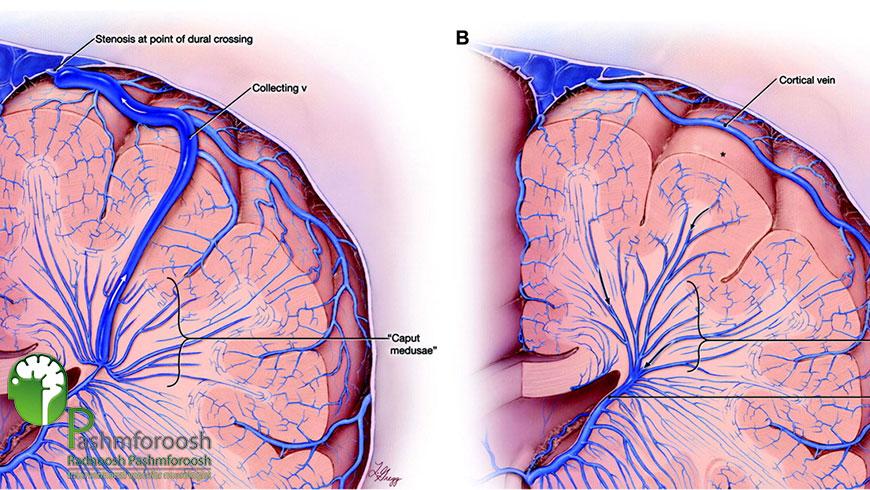 درمان ناهنجاری های شریانی وریدی مغز