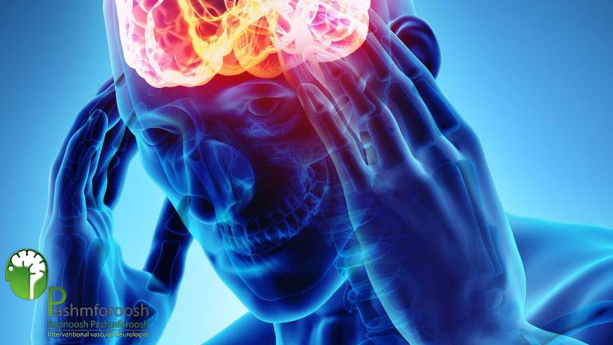 بهترین فوق تخصص درمان سر درد