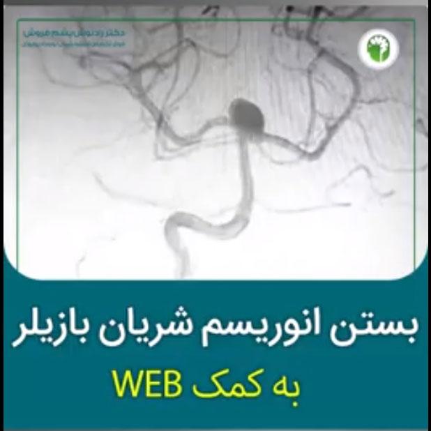 جراحی بسته انوریسم مغزی شریان بازیلر به کمک WEB